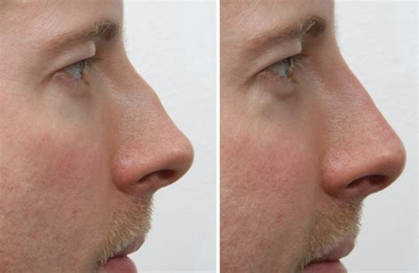 cost of male nose enhancement in the philippines picture 7