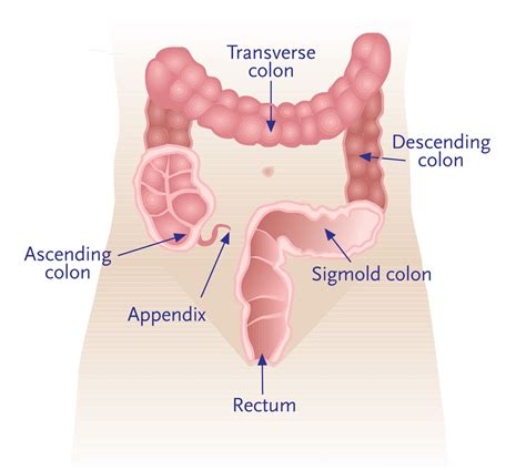 what's in your colon picture 3