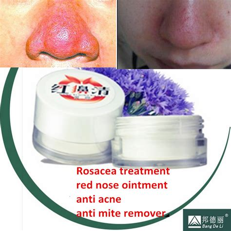 acne rosacea red frace treatment picture 7