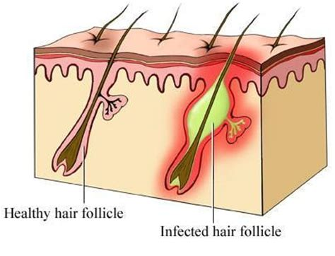 get rid of inflamed hair follicles ob vulva picture 5