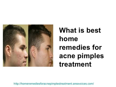 acne home remedies picture 21