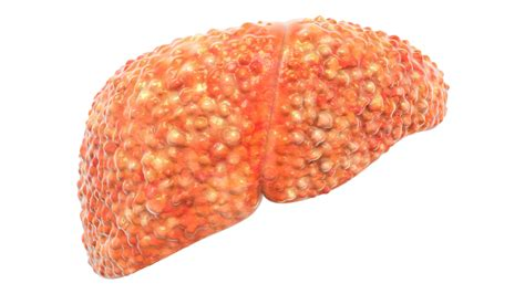 what is in the liver picture 9