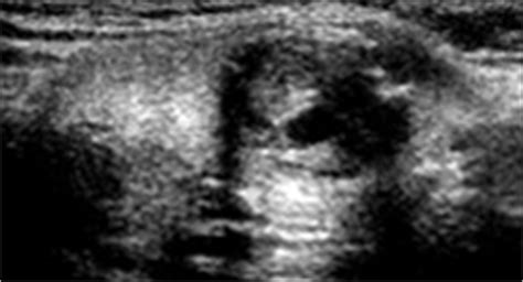 fast growing thyroid nodule picture 14