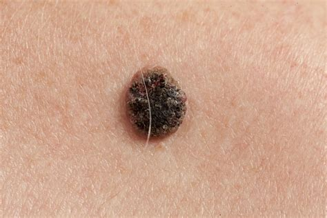 different types of skin cancer picture 1