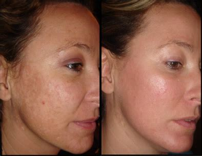 pictures of fraxel laser before and after for picture 4
