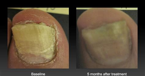 nail fungus laser treatment oklahoma picture 6