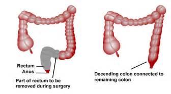 Colon cancer surery picture 1