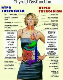 is under active thyroid condition linked to ovarian picture 15