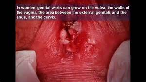 pictures of female genital warts picture 9