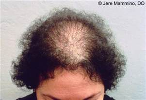 female hair loss medical causes picture 19
