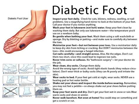foot problems in diabetics picture 7