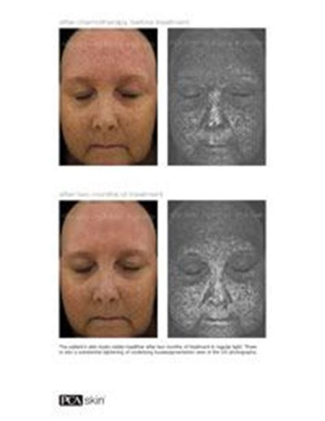 effects of chemotherapy on skin picture 3