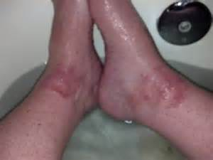 blotchy skin on ankles picture 2