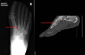 laser toenail fungus treatment in illinois picture 9