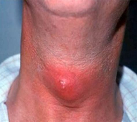 cricopharyngeal spasm natural cure picture 17