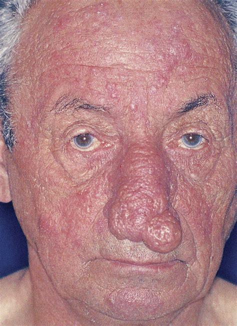 acne roseca phymatous picture 15