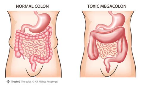 what are the symptoms of colon leaking picture 13