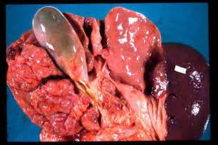 liver affected by cirrhosis picture 11