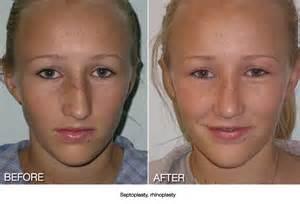 procedure straightens h picture 5