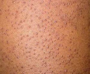 tiny red skin dots picture 6