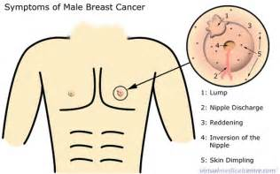 breast cancer liver failure picture 3