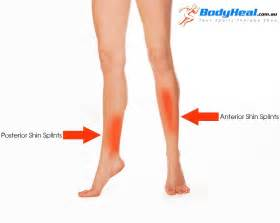 diet leg muscle aches picture 1
