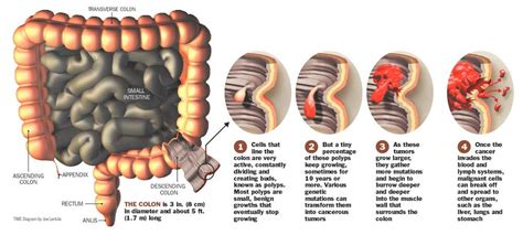 colon cancer symptons picture 10