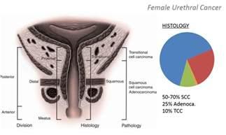 women urethra picture 6