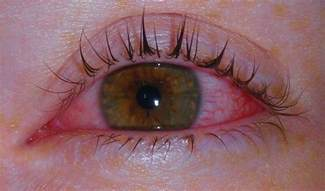 bacterial pink eye picture 3