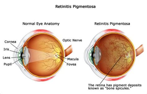 retinitis pigmentosa treatment picture 13