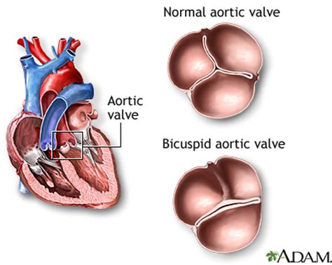 erectile dysfunction and aortic heart valve picture 9