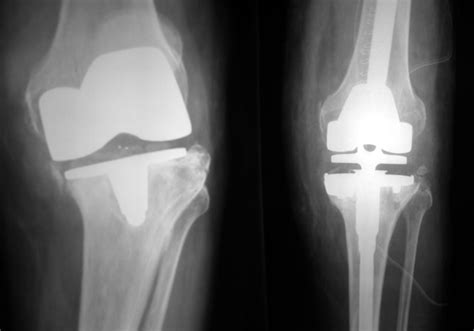 when do knee joint replacements get revised picture 7