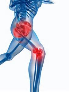 joint replacement hip and knee pain picture 1