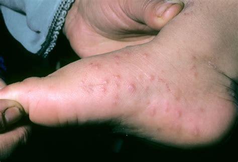 hand skin rash picture 10