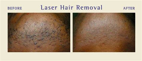california laser hair removal picture 7