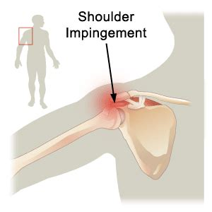 joint impingement syndrome shoulder diagnosis treatment picture 2