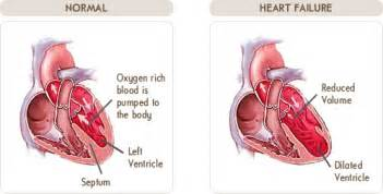 congenital heart condition in adolescent with high blood picture 5