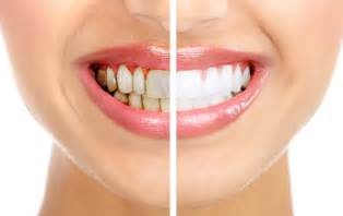 what kind of lip gloss can make your teeth whiter picture 14