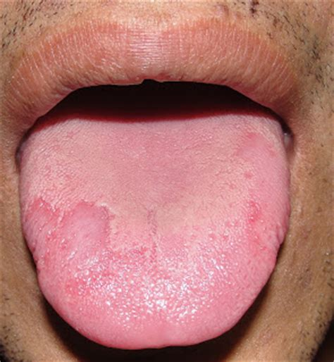 oral yeast infections picture 13