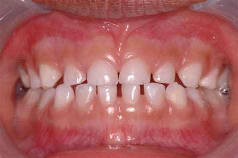 healthy teeth pictures picture 2