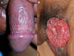 type 1 herpes picture 3