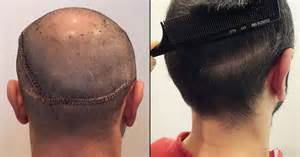 hair transplant removal picture 7