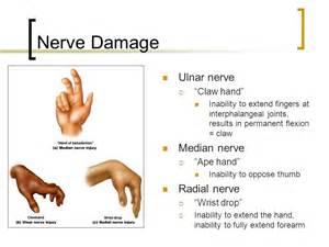 nerve damage h picture 1
