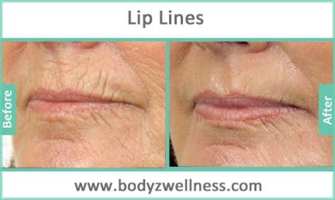 lip line treatment picture 9
