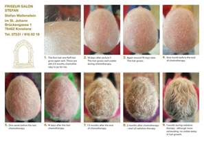 hair growth after radiation treatment picture 2