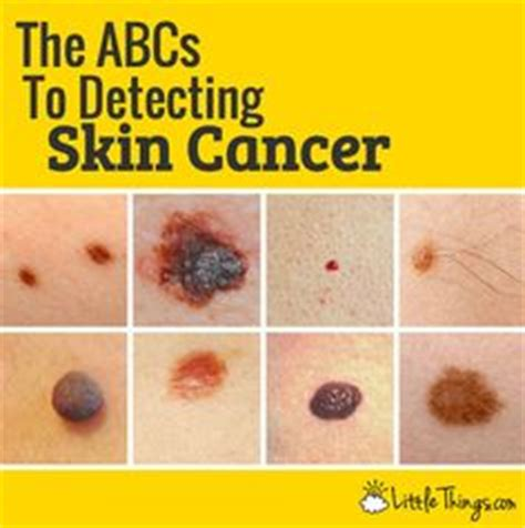 skin cancer identification picture 13