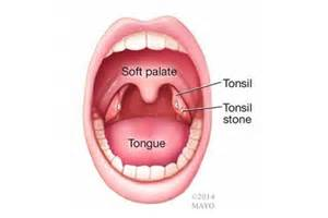 debris in tonsil picture 13