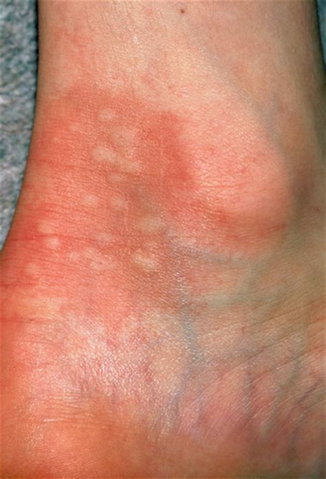 skin rash hives pictures picture 5