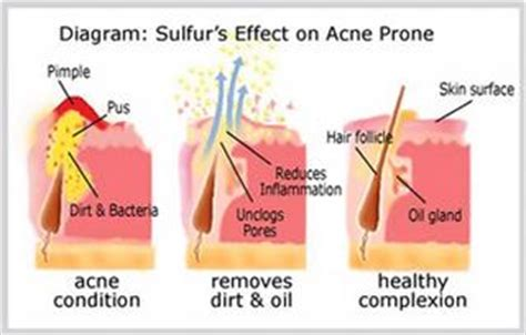 can zinc oxide cause acne picture 9