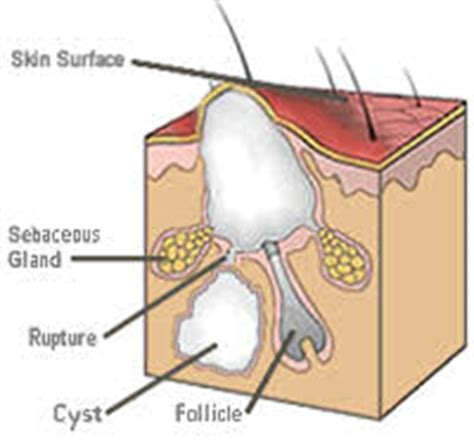 structure of skin modules picture 3